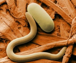 Soybean_cyst_nematode_and_egg-300x246